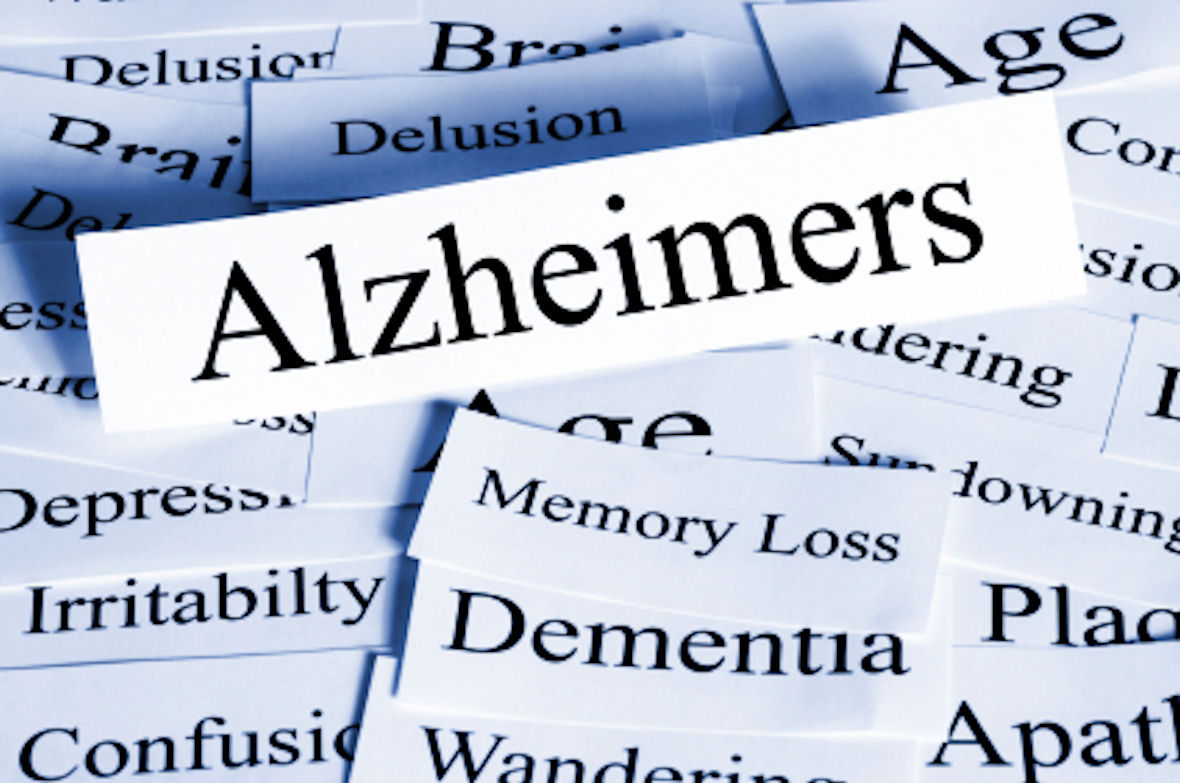 Free Alzheimer's and Dementia drop in sessions