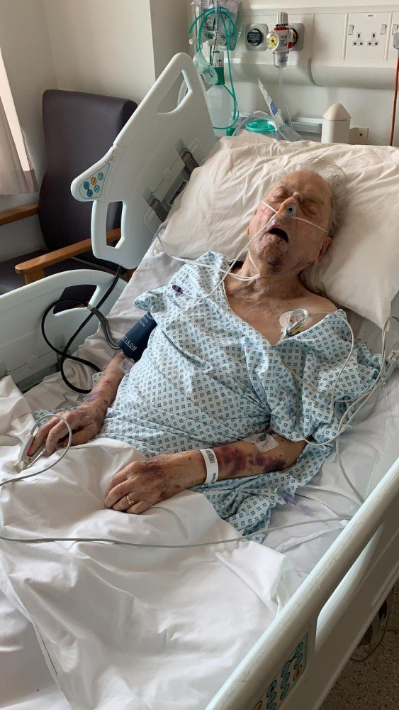 98-year-old Peter Gouldstone was beaten and left for dead